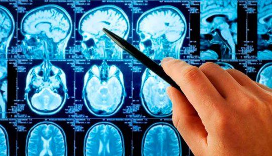 SONEPSYN (Sociedad de Neurología, Psiquiatría y Neurocirugía), tradición y excelencia académica