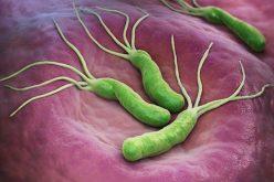 Gastroenterólogos recomiendan incluir test no invasivos en canasta GES para detectar Helicobacter pylori