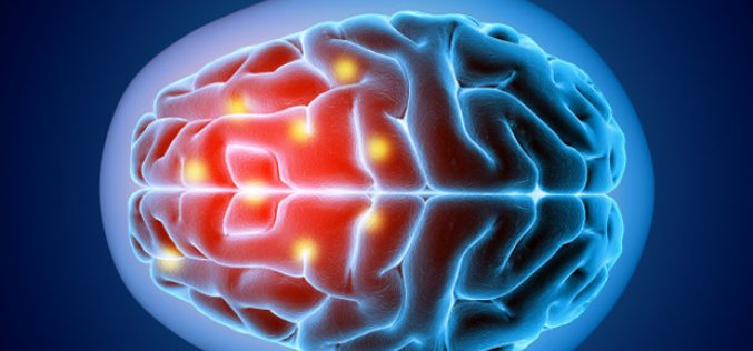 ACCIDENTE CEREBROVASCULAR, LA IMPORTANCIA DE LA REHABILITACIÓN INTERDISCIPLINARIA