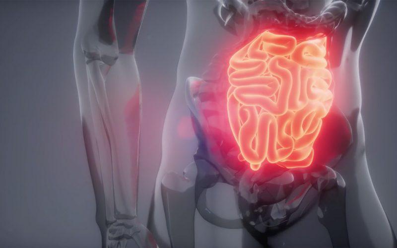 Sobrevida de cáncer digestivo en Chile