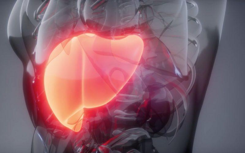 Asociación chilena de hepatología advierte sobre los riesgos del hígado graso en Chile