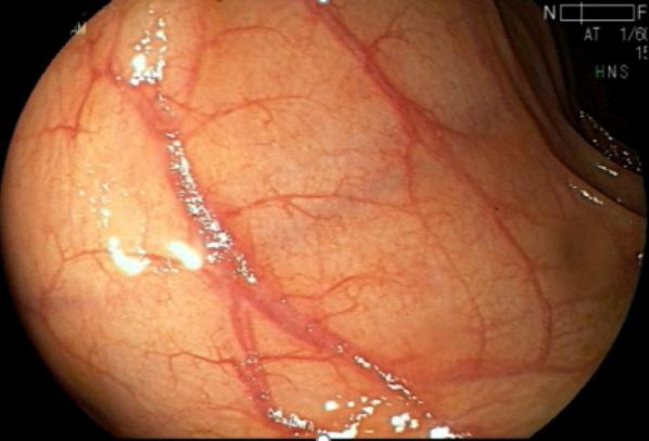Estrategias no invasivas de detección del cáncer de colon